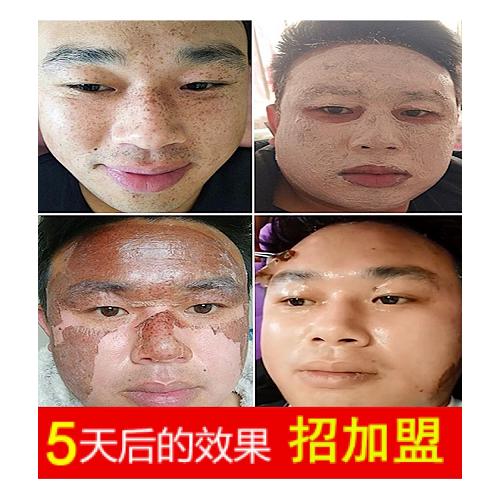 馨滢美五天祛斑技术